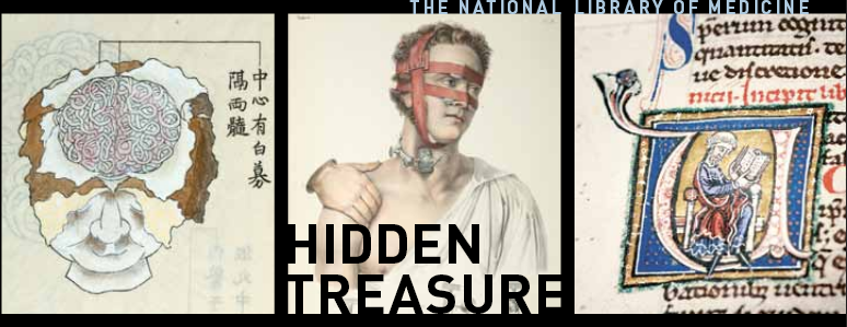 Detail from the cover of the Hidden Treasure book