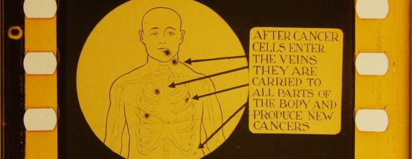 An illustration points out that other areas of the body can produce new cancers.