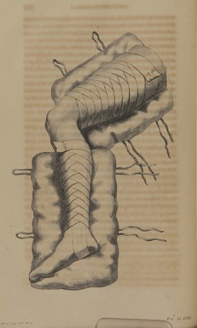 Engraving of a bandaged leg.