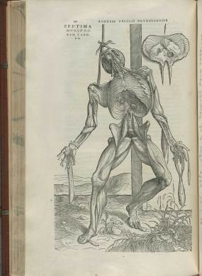 Illustration from Vesalius's De Fabrica showing a realistic image of a partly disected body hung from a post.