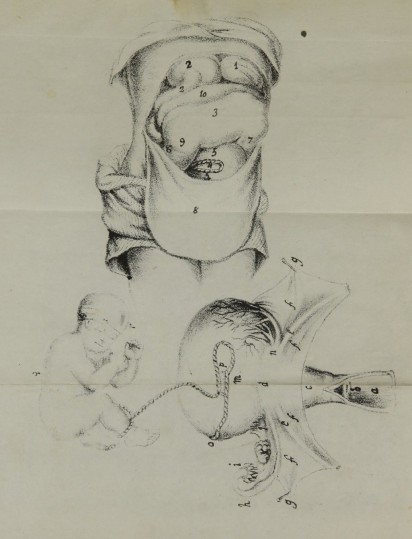 An anatomical illustration showing a nearly full term fetus situated outside the uterus in the abdomen and a detail of the uterus.