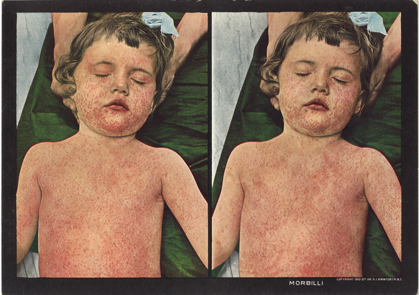 A card with two side by side images meant to be viewed through a sterioscope for 3D effect, a young child covered in a find spotted red rash.