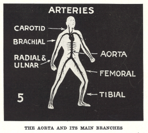 Labeled Illustration of the Aorta and it's main branches.