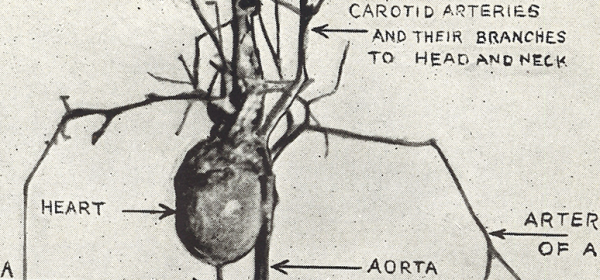 Illustration of a Dissection of the Heart and Blood Vessels