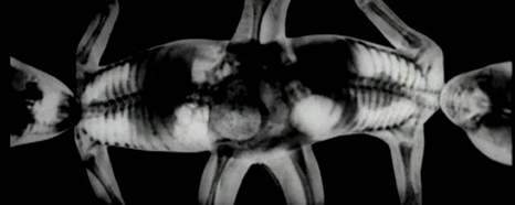 X-ray of Masha and Dasha showing them joined together with legs on the top and bottom and heads opposite on the left and right.