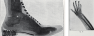 A group of X-ray's showing a foot in a shoe and a hand and arm.
