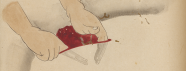A colored drawing demonstrating an incision and removal of tissue from a breast.