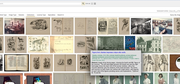 Screen shot of Images from the History of Medicine in Open-i