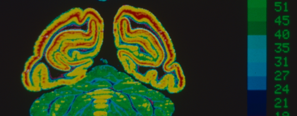 A comparison of a normal and drugged brain showing higher l-dopa in the treated brain.