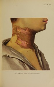 An illustration of an extensive raw and damaged area of skin on a man's neck.